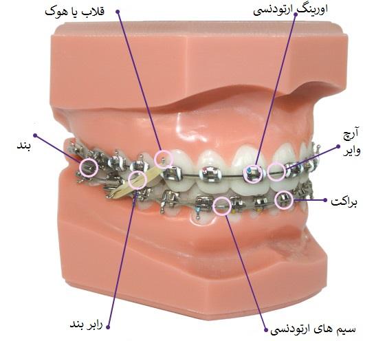 اجزای ارتودنسی